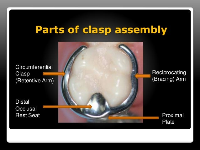Principles of Clasp Design  1. Encirclement- more than 180 degrees in greatest  circumference if the tooth engaged by the ...