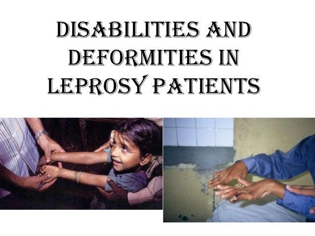 DISABILITIES AND  DEFORMITIES INLEPROSY PATIENTS
