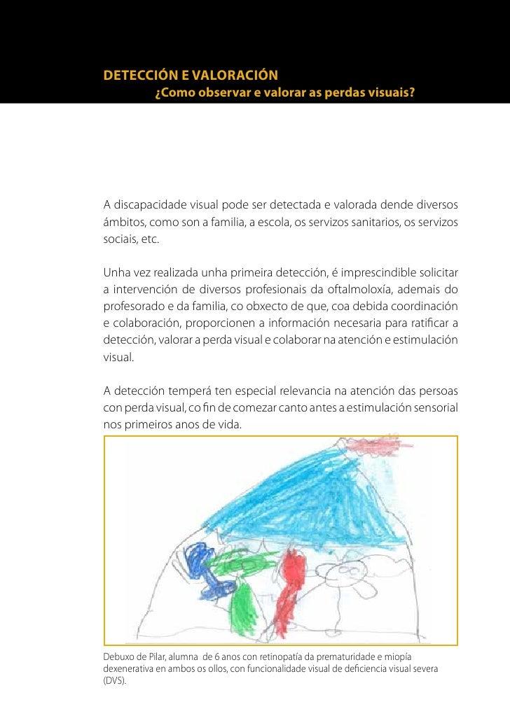 14      Non sempre a avaliación do funcionamento visual se realiza con      instrumentos estandarizados. Observar e rexist...