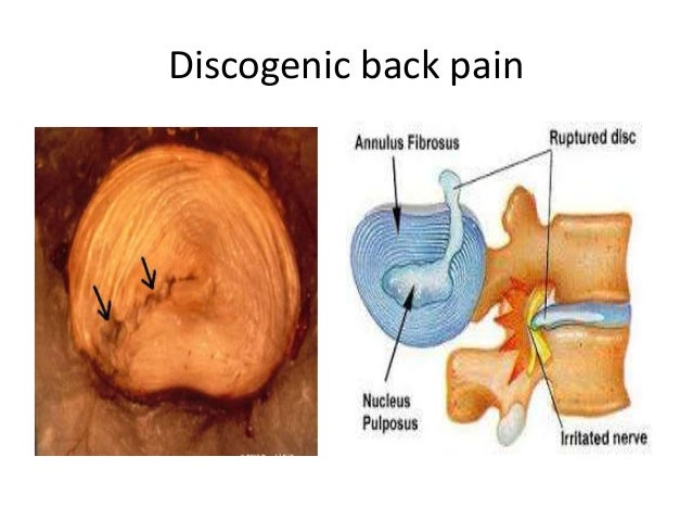 how to help discogenic pain