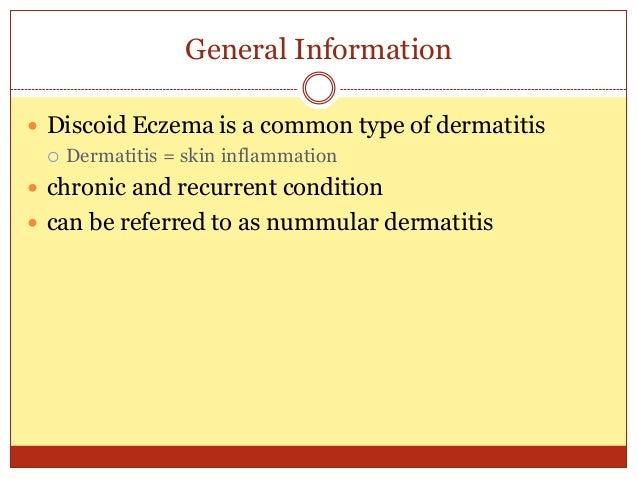 Treating Discoid Eczema Naturally