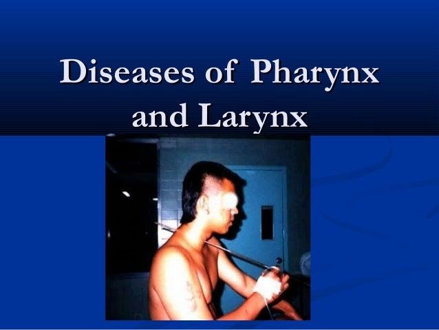 Diseases of PharynxDiseases of Pharynx and Larynxand Larynx