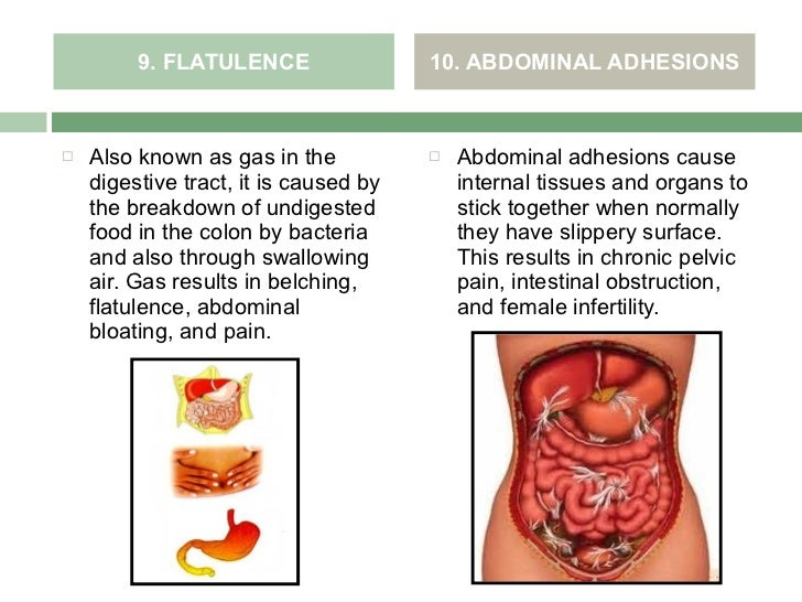 Diseases In The Digestive System Student Nurses