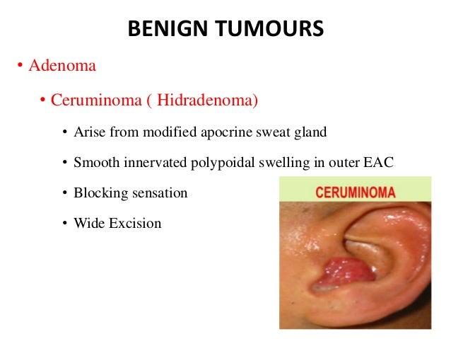 diseases of external ear pdf