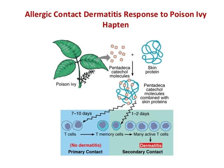 Allergic Contact Dermatitis Response to Poison Ivy Hapten