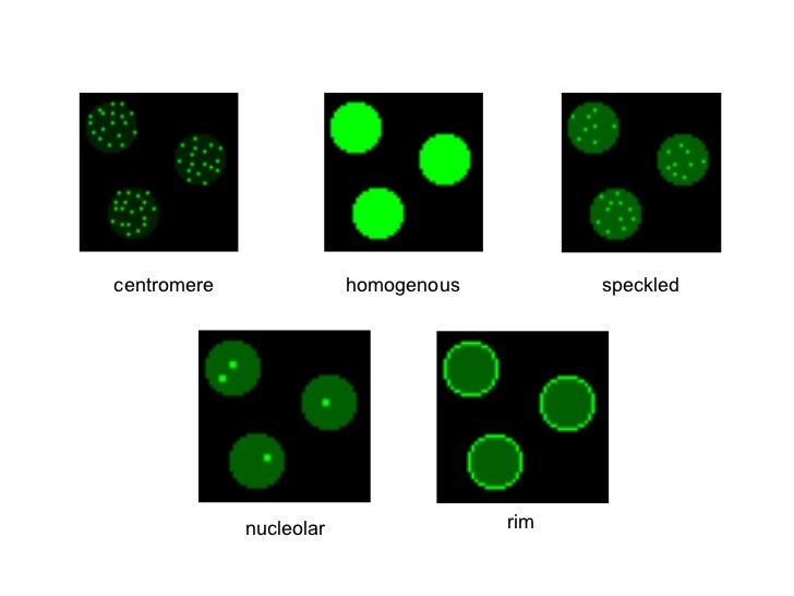 centromere homogenous speckled nucleolar rim