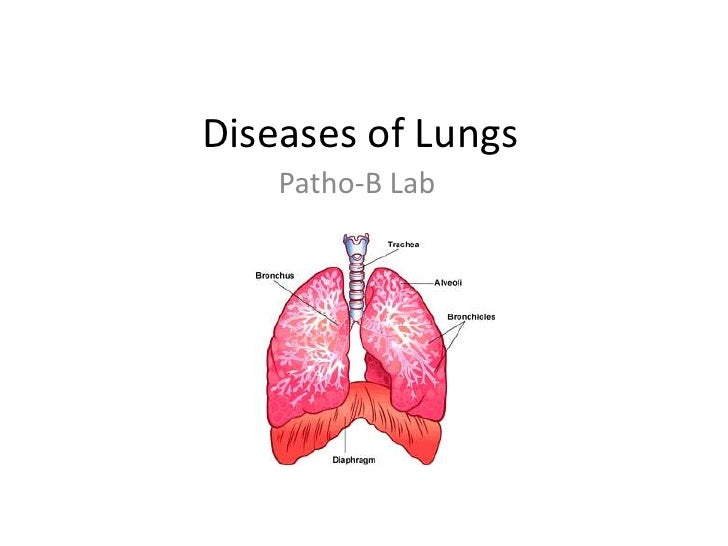 Diseases of Lungs<br />Patho-B Lab<br />