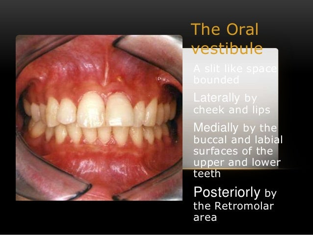 Diseases Of Mouth Palate Lips & Amp Cheek