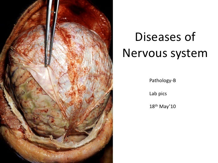 Diseases of nervous system patho lab pics
