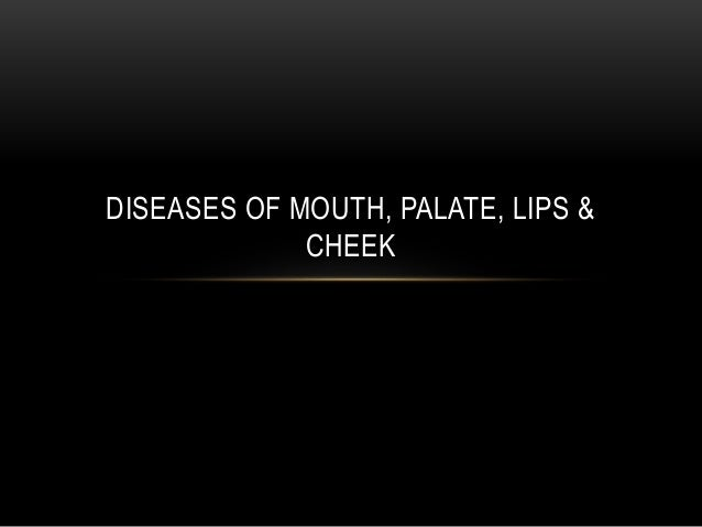 DISEASES OF MOUTH, PALATE, LIPS & CHEEK