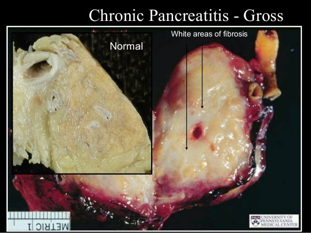 Diseases of the pancreas csbrp