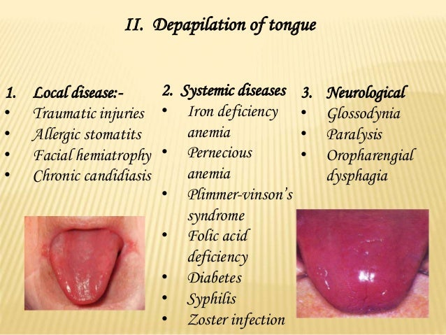 Diseases of tongue