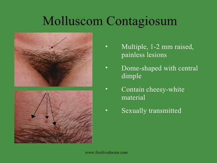 Molluscom Contagiosum <ul><li>Multiple, 1-2 mm raised, painless lesions </li></ul><ul><li>Dome-shaped with central dimple ...