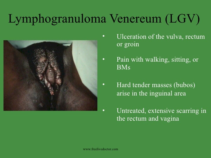 Lymphogranuloma Venereum (LGV) <ul><li>Ulceration of the vulva, rectum or groin </li></ul><ul><li>Pain with walking, sitti...