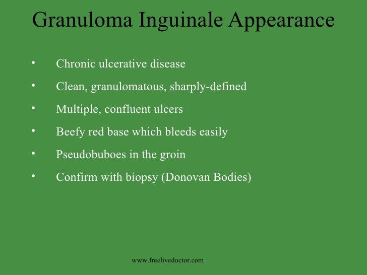 Granuloma Inguinale Appearance <ul><li>Chronic ulcerative disease </li></ul><ul><li>Clean, granulomatous, sharply-defined ...
