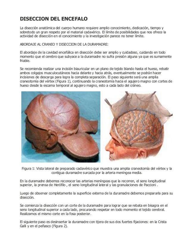 DISECCION DEL ENCEFALOLa disección anatómica del cuerpo humano requiere amplio conocimiento, dedicación, tiempo ysobretodo...