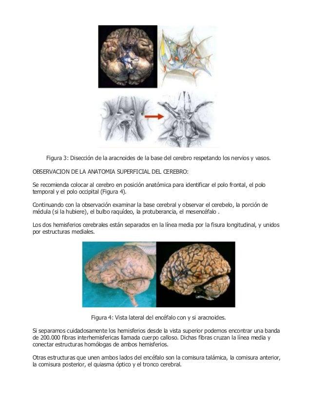 Disección del encéfalo