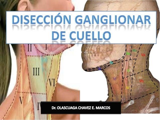 Disecci n ganglionar de cuello for Esternohioideo y esternotiroideo