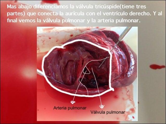 Disección Corazón