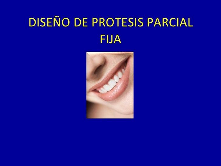 DISEÑO DE PROTESIS PARCIAL FIJA