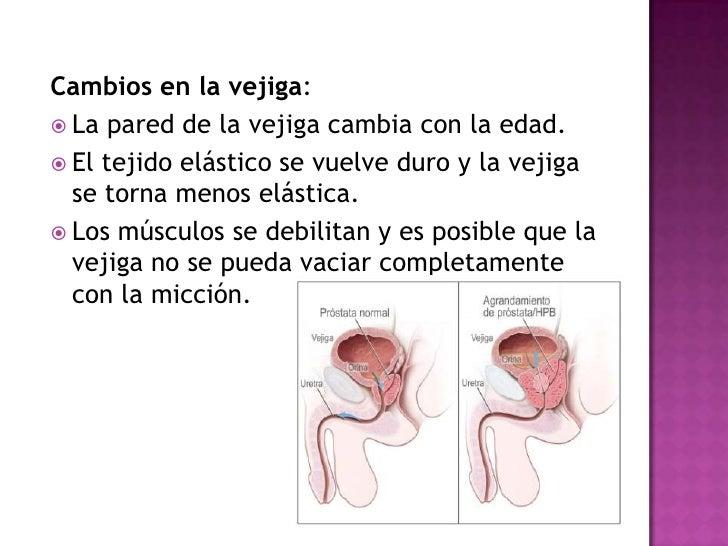 Si si la osteocondrosis es posible subirse sobre la barra fija