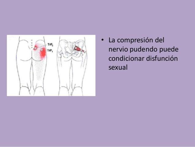 Dispareunia: • La dispareunia o coitalgia es la relación sexual dolorosa tanto en mujeres como en hombres. • Abarca desde ...