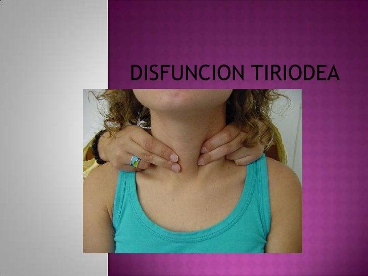 DISFUNCION TIRIODEA<br />