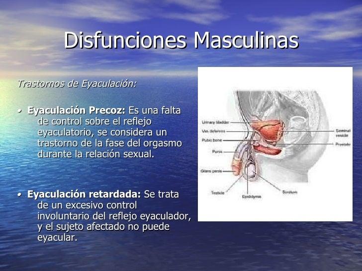 Disfunciones Masculinas <ul><li>Trastornos de Eyaculación: </li></ul><ul><li>•  Eyaculación Precoz:   Es una falta de cont...