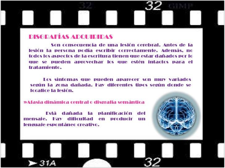 Trastornos de estructuración y orientación espacial.