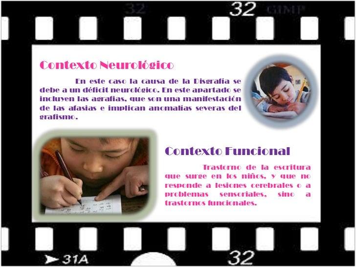 Enfoque Funcional</li></li></ul><li>Contexto neurológico:<br />Contexto Neurológico<br />En este caso la causa de la Disgr...