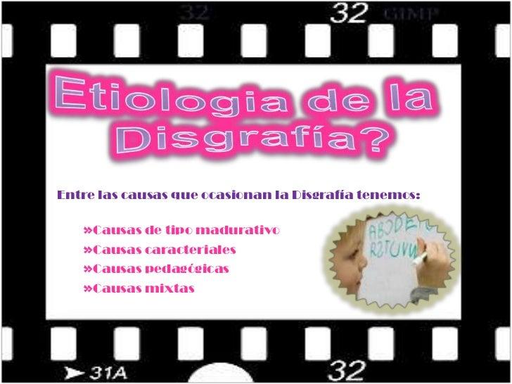 Etiologia de la <br />Disgrafía?<br />Entre las causas que ocasionan la Disgrafía tenemos:<br /><ul><li>Causas de tipo mad...