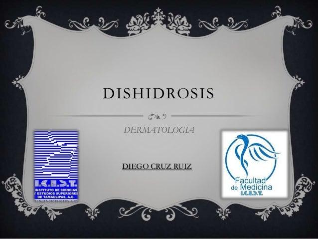 DISHIDROSIS  DERMATOLOGIA DIEGO CRUZ RUIZ