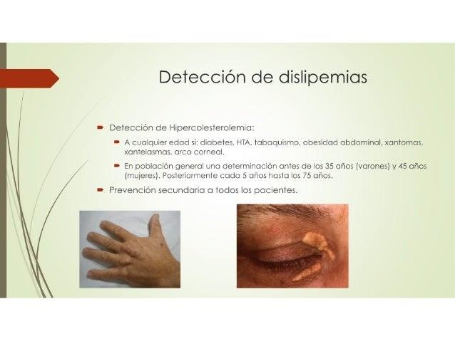 Dislipemias Slide 2