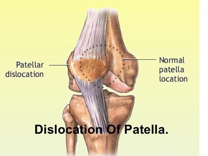 Dislocation Of Patella.