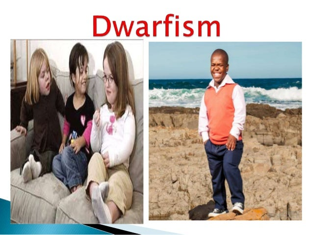 the pituitary gland and dwarfism essay Free essay examples, how to write essay on the pituitary gland and dwarfism example essay, research paper, custom writing write my essay on pituitary growth hormone.