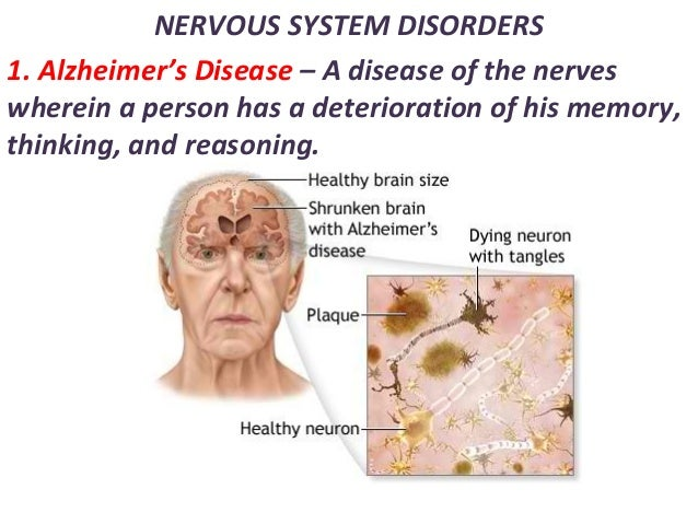 NERVOUS SYSTEM DISORDERS 1. Alzheimer's Disease – A disease of the nerves wherein a person has a deterioration of his memo...