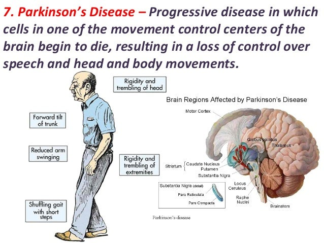 nervous system parkinsons disease Nervous system diseases  12q14 microdeletion syndrome 15q133 microdeletion syndrome  central core disease central nervous system germinoma central neurocytoma.