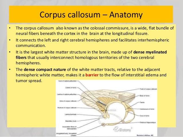 Anatomy of corpus callosum