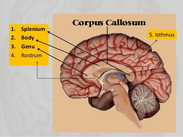 disorders of corpus callosum, Cephalic Vein