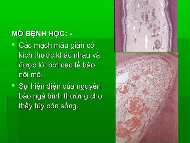 MÔ BỆNH HỌC: - Các mạch máu giãn có  kích thước khác nhau và  được lót bởi các tế bào  nội mô. Sự hiện diện của nguyên  ...