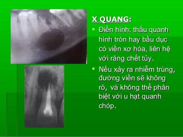 LÂM SÀNG:- Giai đoạn đầu – nhạy  cảm ở răng liên quan. Sau đó– đau tăng lên,  rất nhạy cảm khi gõ. Trồi răng. Toàn thâ...