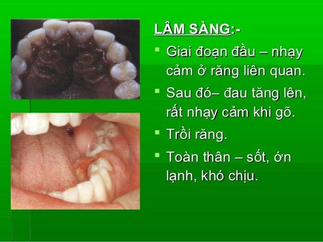 VIÊM TẤY SÀN MIỆNGLUDWIG (LUDWIG'S ANGINA) Viêm mô tế bào vùng dưới hàm liên quan  khoang dưới lưỡi, dưới hàm và dưới  cằ...
