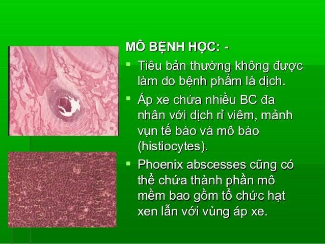 VIÊM CỐT TỦY(OSTEOMYELITIS)