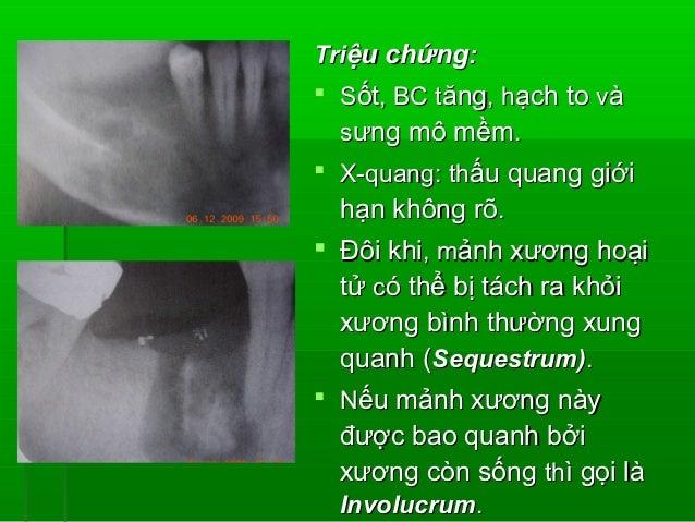 LÂM SÀNG: - Hâu hết ở trẻ em và người  trẻ. Thường xảy ra ở vùng răng  sau hàm dưới, kết hợp với  viêm tủy/ hoại tử tủy....