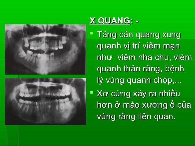 YẾU TỐ THUẬN LỢI: -1. Chấn thương tại chỗ.2. Estrogen.3. Độc tố vi khuẩn.4. Bơm rửa không thích hợp vùng ổ răng   sau nhổ....
