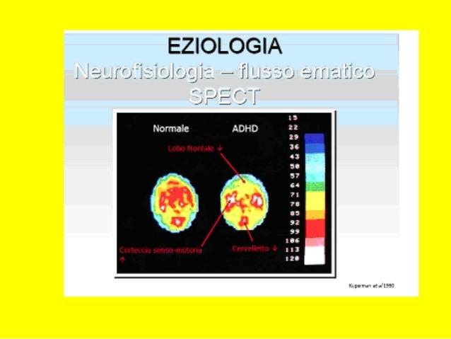 ADHD IN ADOLESCENZAADHD IN ADOLESCENZA Modifica dei sintomi e dei problemi daModifica dei sintomi e dei problemi da comorb...