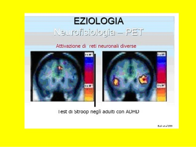 DDAI IN ADOLESCENZADDAI IN ADOLESCENZA Problemi specifici nella diagnosi/Problemi specifici nella diagnosi/ diagnosi diffe...