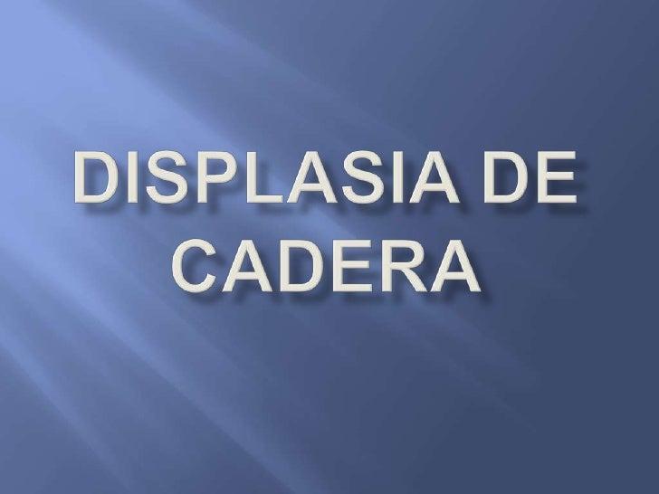 DISPLASIA DE CADERA<br />