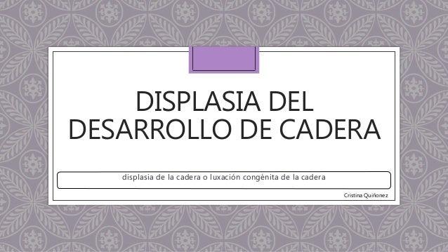 DISPLASIA DEL DESARROLLO DE CADERA displasia de la cadera o luxación congénita de la cadera Cristina Quiñonez