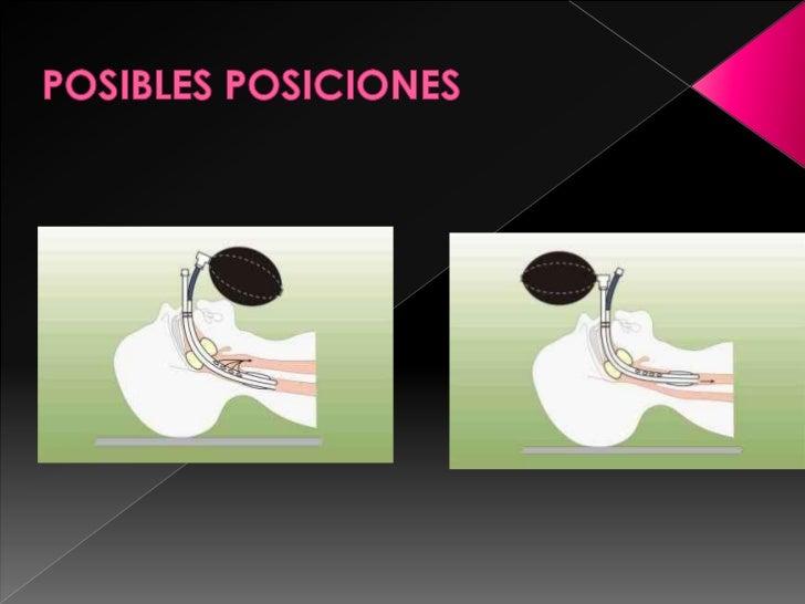 POSIBLES POSICIONES<br />